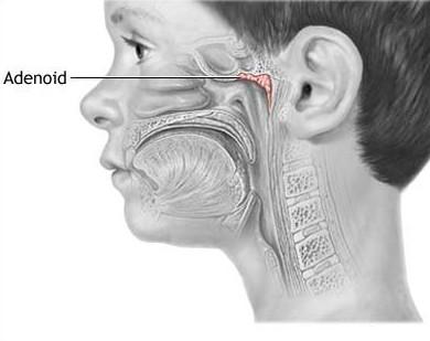 Аденоиды - расположение
