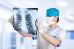 Рентген воспаленных легких