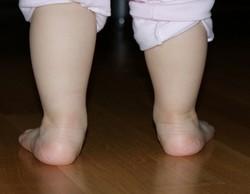 Плосковальгусные стопы детей фото