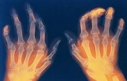 Рентген рук человека, болеющего ревматоидным артритом