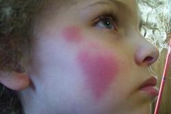 Красные щеки у девочки после зимней прогулки
