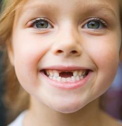 Девочка без передних молочных зубов